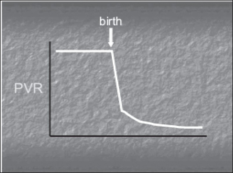 Figure 1 :X-axis depicts age of the patient from antenatal to postnatal period and Y-axis depicts the pulmonary vascular resistance (PVR). There is a decrease in PVR at birth which continues to decline in the first 2-6 weeks.