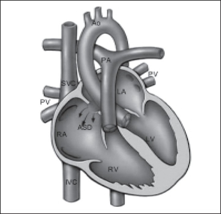 Figure 2 :Showing atrial septal defect (ASD). Arrows depict flow of red blood from left atrium (LA) to right atrium (RA) across the ASD. There is dilated RA and right ventricle (RV). (LV: left ventricle, PA: pulmonary artery, A: aorta, IVC: inferior vena cava, SVC: superior vena cava, PV: pulmonary vein)