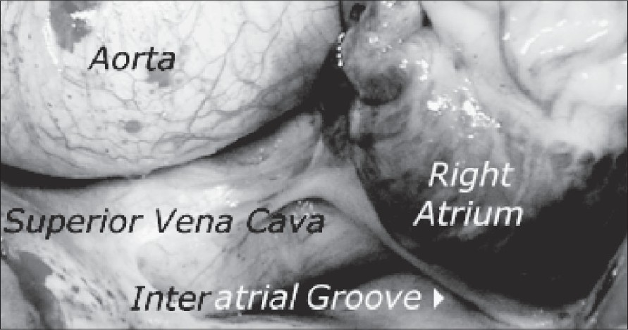 Figure 1: Operative photograph showing the SVC draining into the left atrium behind the interatrial groove