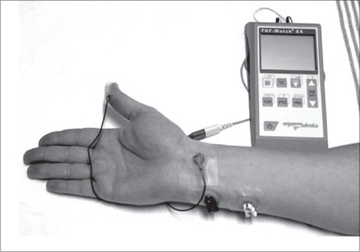 Figure 3: At present, acceleromyography (here shown the TOF watch SX, Organon Teknika, NL) is the most accurate, simple to apply, and reliable monitoring method commercially available to measure neuromuscular blockade objectively in routine clinical settings. It measures acceleration of the thumb by the formula: force = mass × acceleration.
