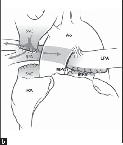 Figure 1b :shows BDG shunt with PPA interruption.