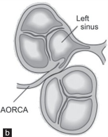 Figure 1b :Schematic drawing showing origin and course of right coronary artery (b) abnormal origin and interarterial course. RCA – right coronary artery, AORCA – anomalous origin of right coronary artery, and LCA – left coronary artery.