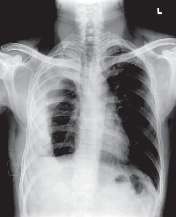 Figure 1 :CXR showing empyema thoracis with resultant collapse of the lung and deviation of the trachea to right side