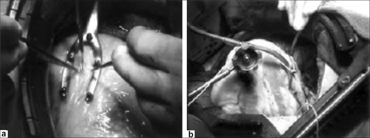 Figure 2: Example of the stabilizing system (CorVasc System; CoroNéo Inc., Montreal, Quebec, Canada) used at the AIIMS center for the left anterior descending artery (a) and obtuse marginal artery anastomosis (b)