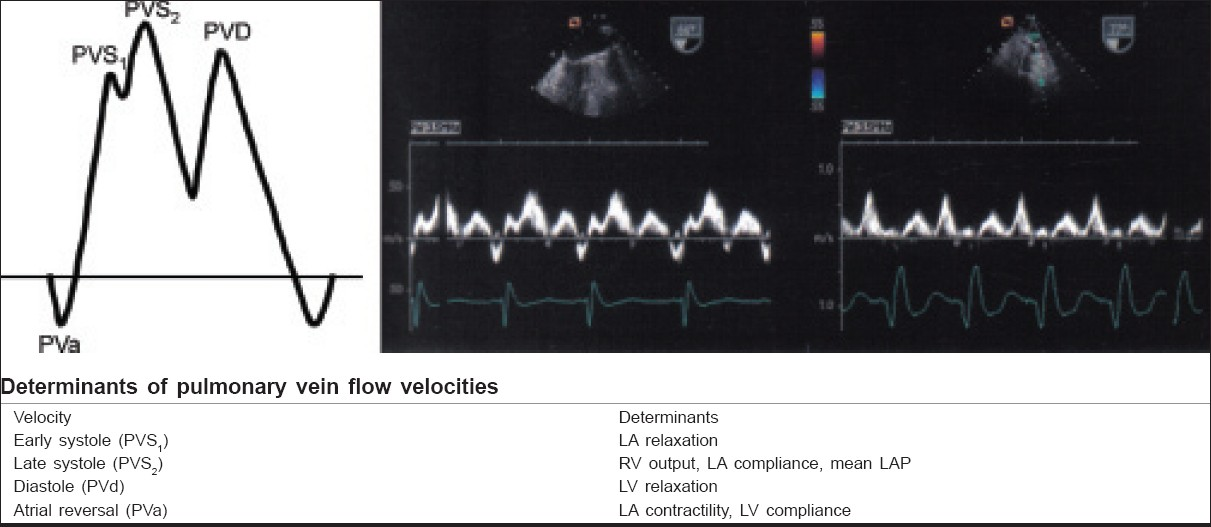 Figure 3: Pulmonary vein Doppler velocities and filling pressures and compressions effects