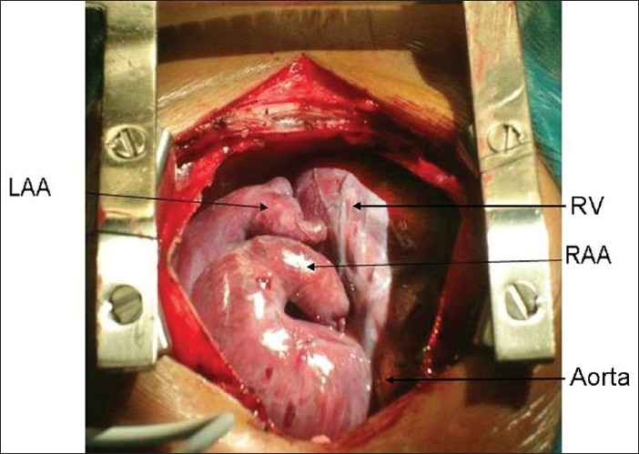 Figure 1: Intraoperative photograph showing right atrial appendage (RAA) juxtaposed on the left. LAA - left atrial appendage, RV - right ventricle