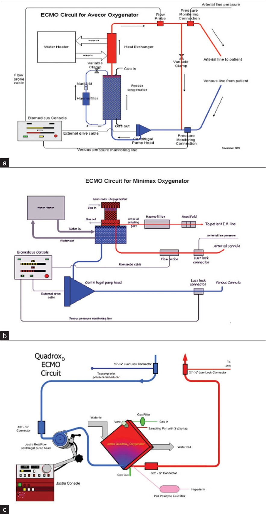 ecmo configuration diagram