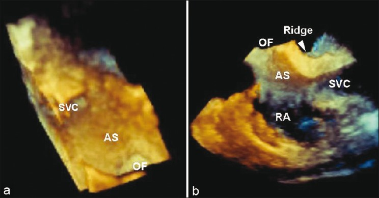 Figure 2: The views of atrial septum (AS) from the right atrium are shown with 3-dimensional transesophageal echocardiography. The AS is viewed from the right atrial free wall in panel (a) The oval fossa (OF) is demonstrated as slight depression of the atrial septum. The atrial septum is viewed in standard bicaval view in panel. (b) SVC denotes superior vena cava. The ridge formation is depicted by a white arrow head