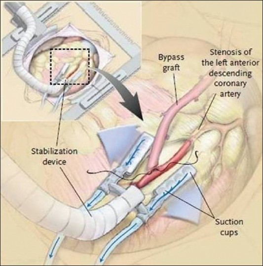 anesthesia for off pump coronary artery bypass surgery hemmerling tm