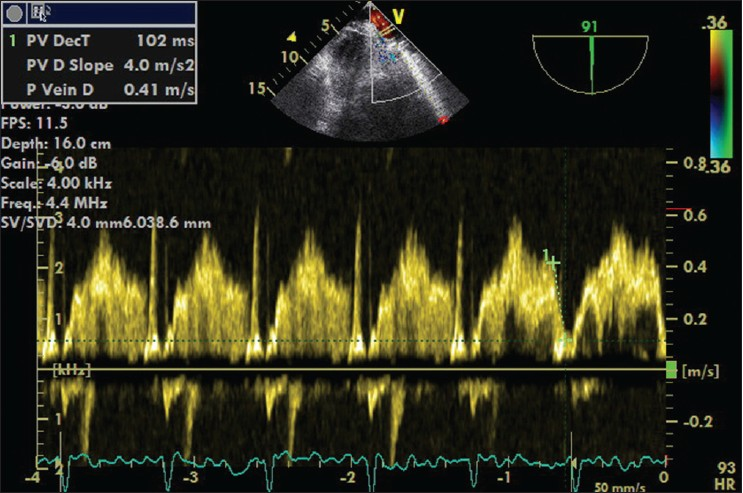 Figure 3: Pulmonary venous doppler spectral in left upper pulmonary vein