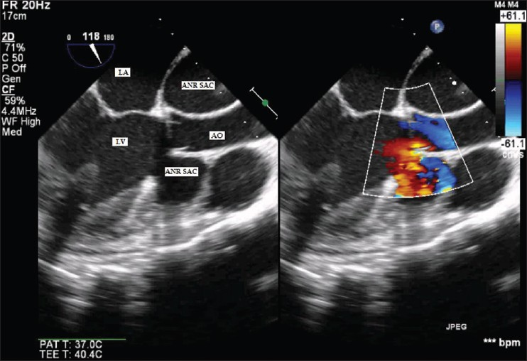 Figure 2: Mid-esophageal aortic valve long axis view showing neck of aneurysm arising from left ventricular outflow tract and color Doppler showing flow into aneurysm