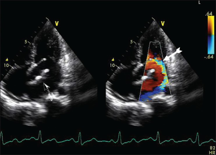 Figure 3: Transthoracic echocardiography apical view showing left atrial myxoma (black arrow) and severe mitral regurgitation (white arrow)