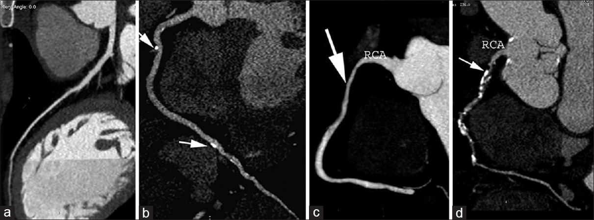 Figure 1: Multiplanar reformatting images of coronary computed tomography angiography in four different patients are demonstrated. (a) Normal left anterior descending artery, (b) nonobstructive calcified plaques (arrows) in the right coronary artery, (c) moderate stenosis of long segment of proximal right coronary artery (arrow), and (d) severe stenosis of multiple lesions in right coronary artery (arrows)