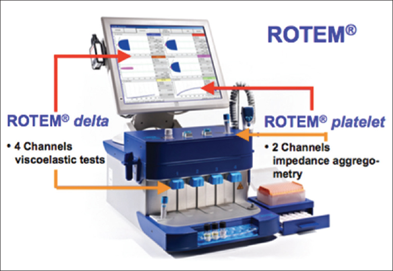 Figure 1: ROTEM device with integrated platelet-aggregometry module. ROTEM device containing 4 independendent channels in lower pannel for carrying out simultaneous different ROTEM tests (INTEM/EXTEM/FIBTEM/HEPTEM) and 2 channels in upper pannel for impedence aggregometry tests. ROTEM platelet assays (ARATEM/ADPTEM/TRAPTEM) are used to study effect on various platelet inhibior drugs. ROTEM: Rotational thromboelastometry
