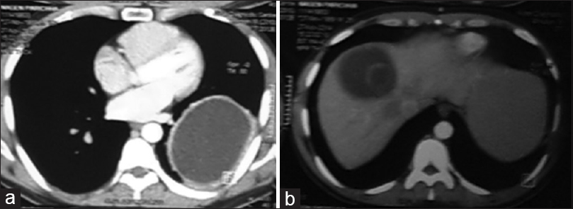 Figure 2: (a and b) Computerized tomography scan image of the hydatid cysts in the lungs and liver