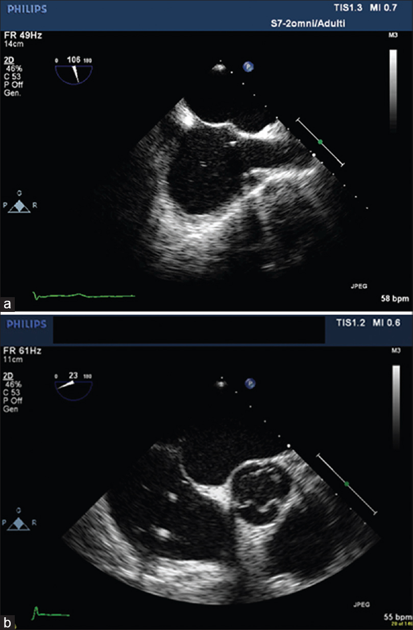 Figure 2: Transesophageal echocardiography images showing transseptal puncture of the central region of the septum during an appendage occlusion procedure. (a) Bicaval view. (b) Short-axis view