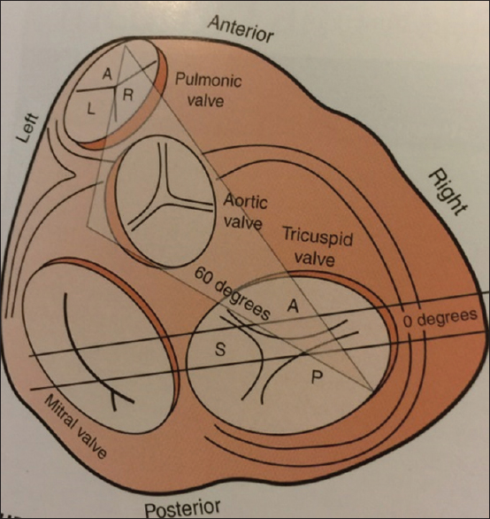 View image figure 1 schematic diagram of the heart that shows the spatial relationships of the valves ccuart Images