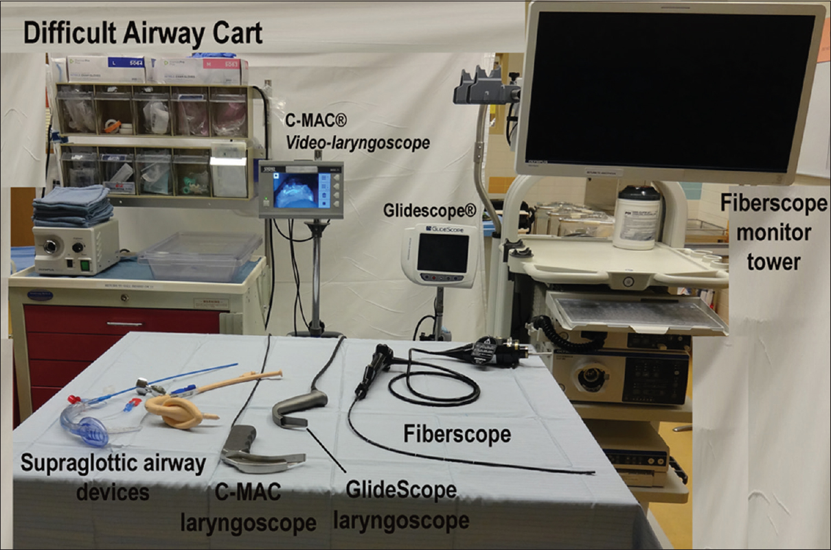 Bilderesultat for video laryngoscope anesthesia airway management