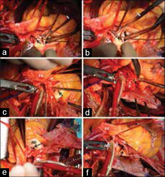 Figure 2: (a-f) Surgical photograph of the techniques used for the left main coronary angioplasty. (a and b) anterior approach to the left main coronary artery. The main pulmonary artery is retracted away from the aorta. The overlying pericardial fat is carefully removed over left main coronary artery. A clear exposure of the left main coronary artery up to its distal bifurcation between the left anterior descending and left circumflex arteries is obtained. An oblique aortic incision about 10–12 mm long is made from the anterolateral wall of the juxta-ostial aorta to the ostium of the left main coronary. Insertion of a coronary probe into the left main coronary artery facilitated this step. The oblique aortotomy is away from the commissure between the left coronary cusp and the right coronary cusp. (c-f) Step-by-step demonstration of the placement of a rhombic-shaped pericardium as onlay patch. The patch is carefully sewn into the left main coronary artery, using a 7-0 prolene suture and onto the aorta as a gusset using a 6-0 continuous prolene suture. Note the increased size of the left main coronary artery and the adjacent aortic wall without waisting/kinking or bulging (PA: Pulmonary artery, AO: Aorta, P: Pericardial patch, *Left main coronary artery)
