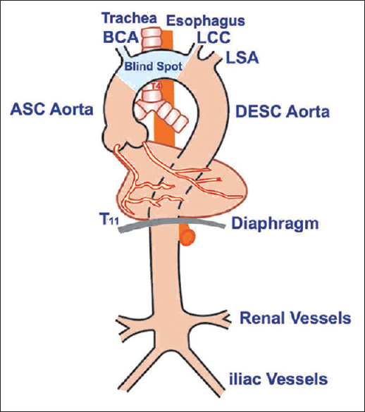 Transesophageal Echocardiography Evaluation Of The Aortic Arch