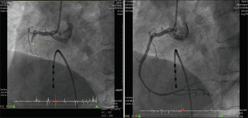 Figure 2: Coronary angiography showed middle right coronary artery total occlusion (left). Coronary angiography after balloon dilatation and stent application (right)