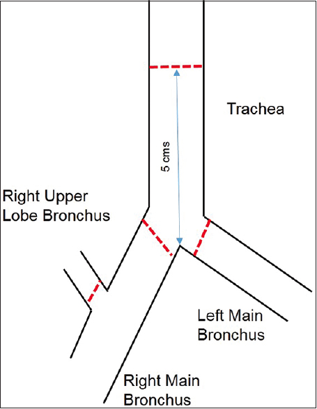 Figure 1: Line diagram shows the technique of measurement of tracheal, bronchial, and right upper lobe diameters on a coronal reconstructed CT image