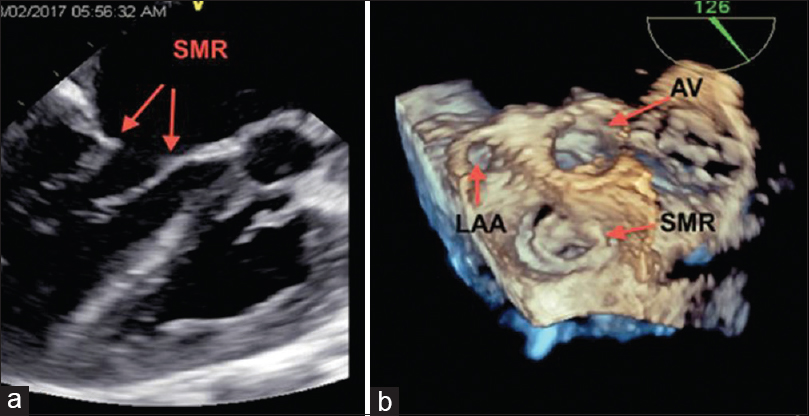Figure 6: Transesophageal echocardiography: Mid-esophageal long-axis view showing funnel-shaped mitral valve opening with supramitral ring encroaching on mitral valve leaflets (a) two-dimensional and (b) three-dimensional image