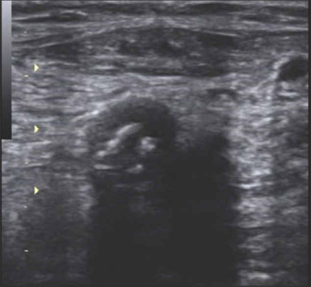 Figure 2: Showing thrombus in the right common femoral artery