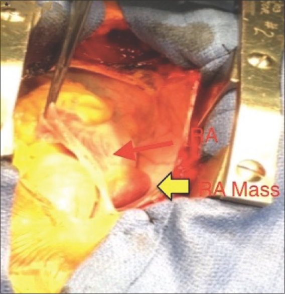 Figure 4: Intraoperative image following sternotomy